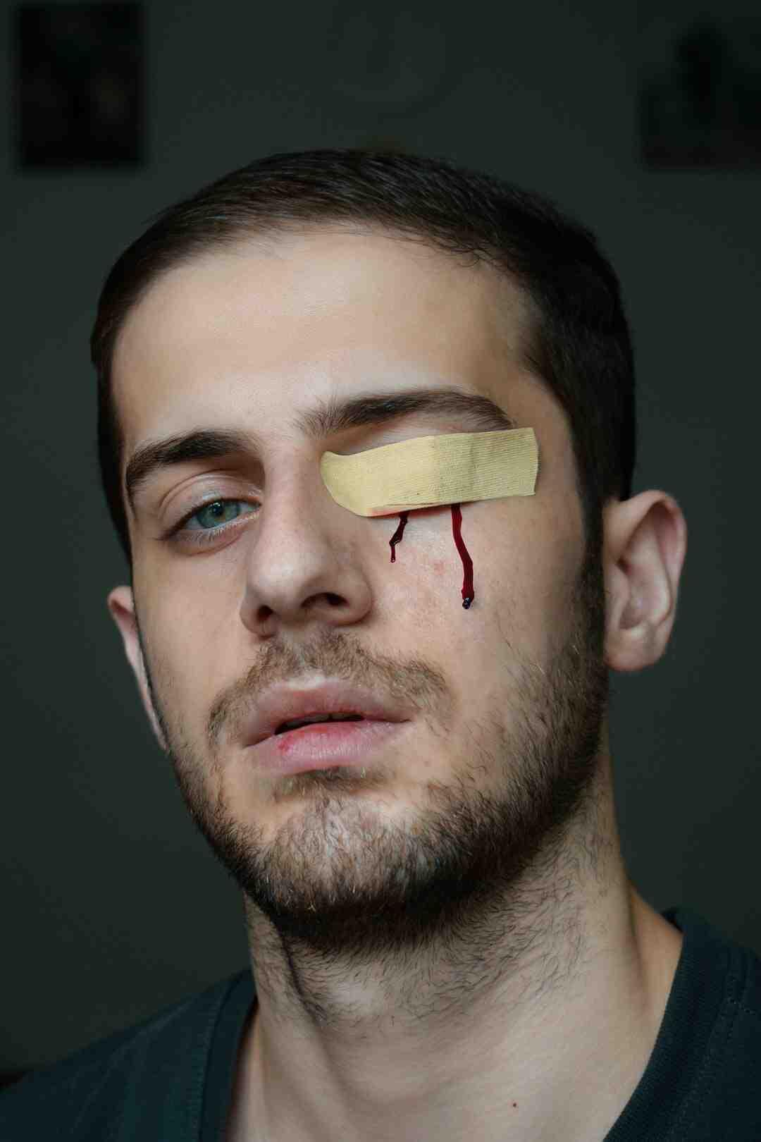 Comment savoir si une blessure nécessite des points de suture