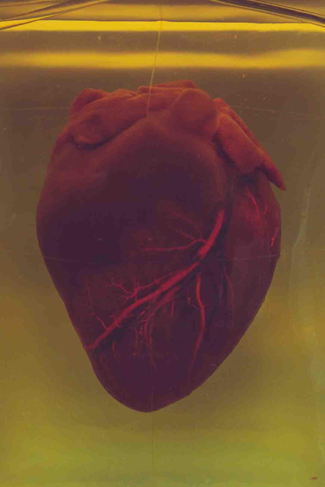 Comment soigner la calcification des artères ?