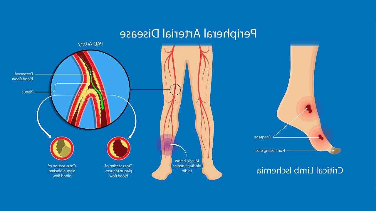 Comment soigner une nécrose du pied ?