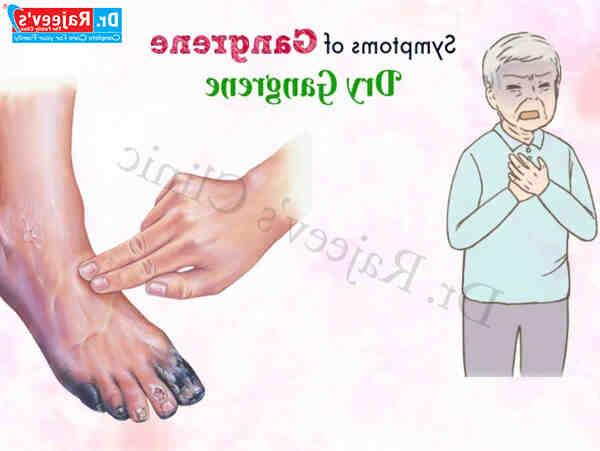 Comment traiter la gangrène